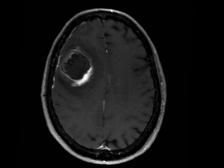 How reliable is MRI for the evaluation of treated high-grade gliomas?