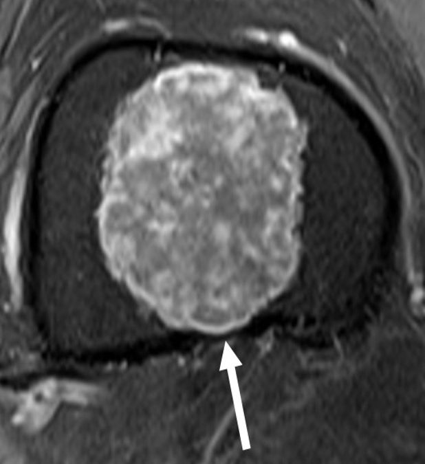 Enchondorma or Chondrosarcoma: not so easy!