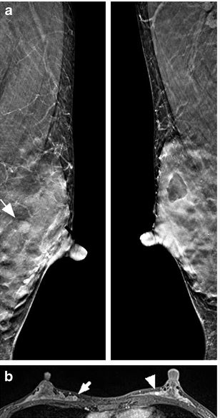 Dense breast: tomosynthesis vs MRI. And the winner is…