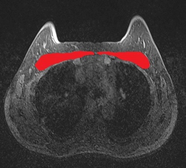 Breast MRI: look around, not only at the gland