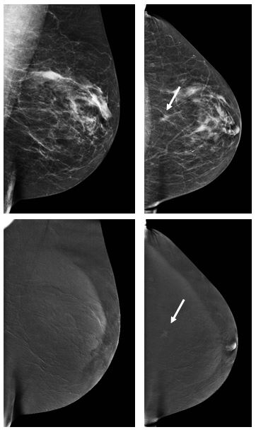 Contrast–enhanced mammography: Is a single view enough?