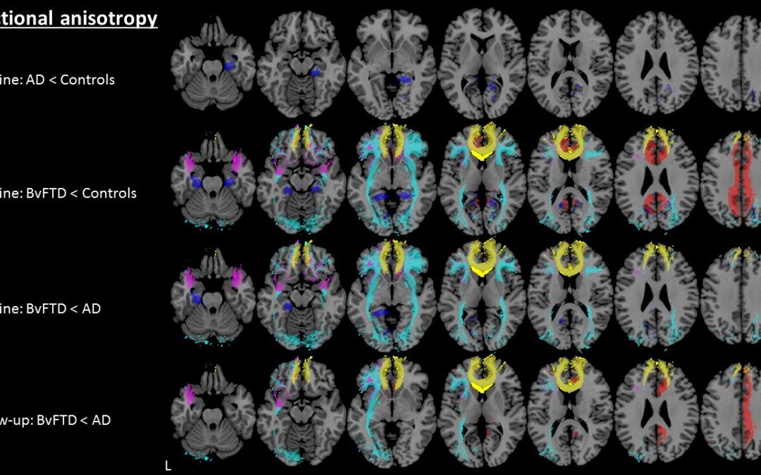 Early diagnosis of dementia with MRI