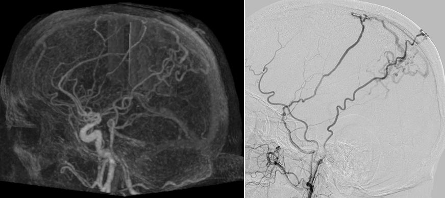 Cranial arterio-venous shunts: the role of 4D-CTA