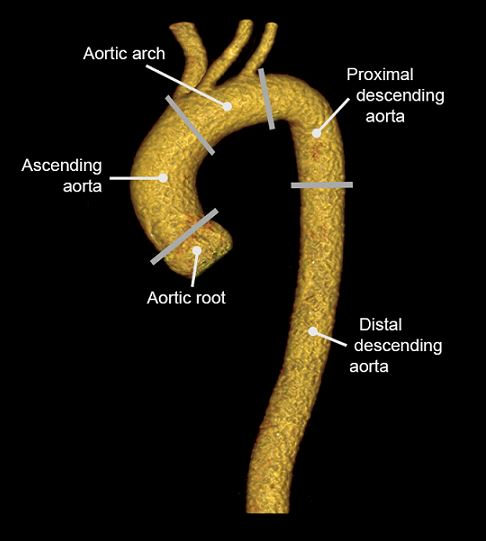 Further imaging tools for aortic acute syndrome